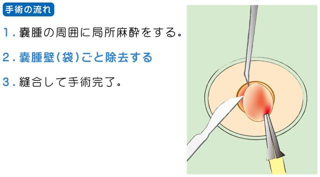 粉瘤の治療