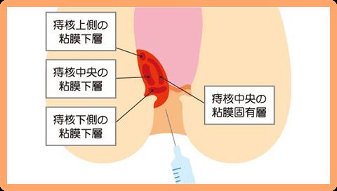 ALTA療法(ジオン注射)